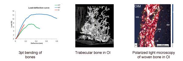 Mechanoadaptation In Bone Shefelbine Lab
